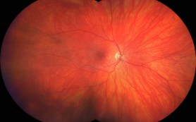 Comprehensive Digital Retinal Exam Image