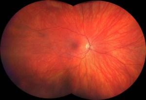 Comprehensive Eye Exam fundus Image