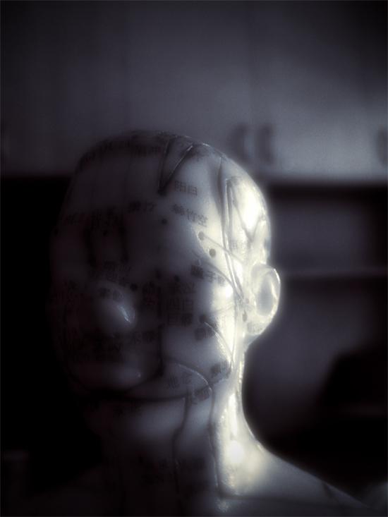0453accupuncture