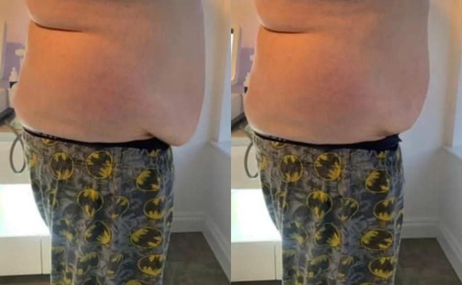 4d body hifu before and after