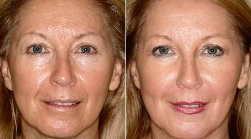 radio frequency face lift skin tightening lip plumping