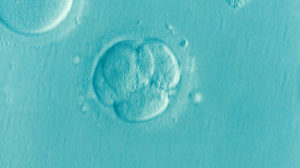 Image of a human embryo illustrating this Pregnancy FAQ.