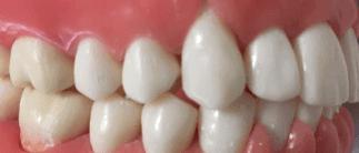 口臭対策 予防 ケア 歯磨き粉 サプリ