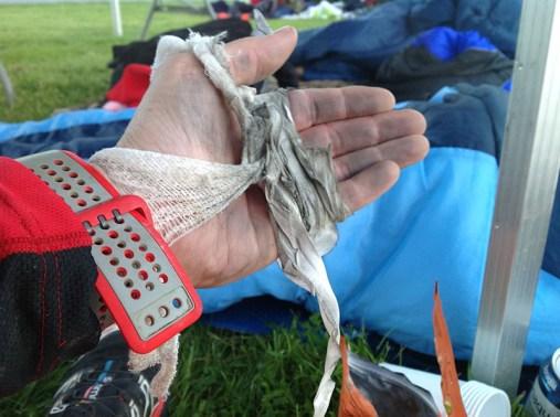 TOUGHEST 24H XTREME 2015, Bandage links (2)