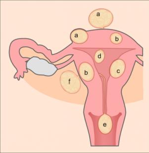 Schéma de différents types de léiomyomes utérins, Wikipedia