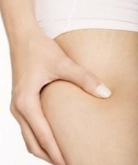 Que faire pour éliminer la Cellulite Des Cuisses ?
