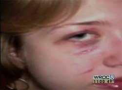 Rochester_victim