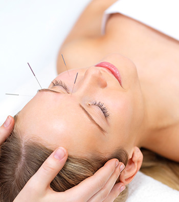facial-acupuncture