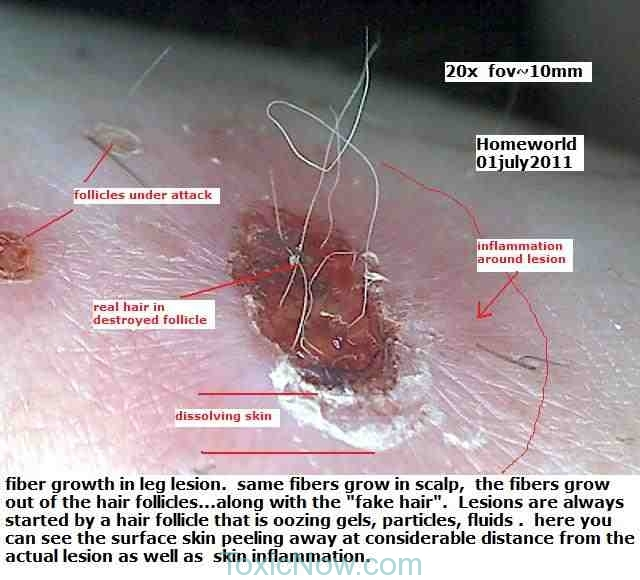 chemtrails-morgellons-toxicnow (9)