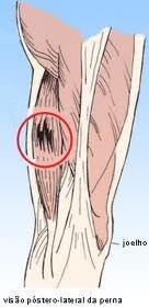Distenção muscular da perna