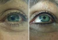Birmingham Permanent Eyeliner 1