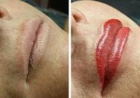 Birmingham Permanent Lips