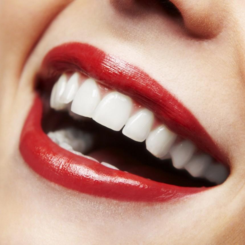 Dental Inlays / Onlays