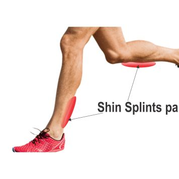Shin-Splints-3
