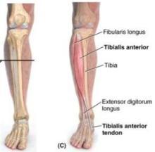 tibialis_anterior1340247837998-thumb400