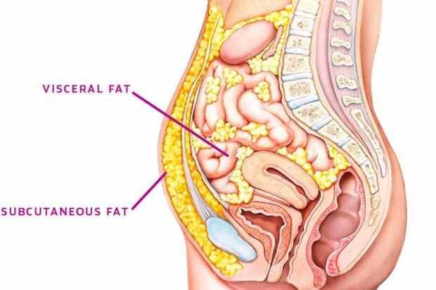 subcutaneous vs visceral fat