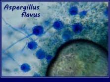 ASPEGILLUS