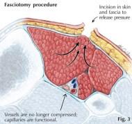 Compartment-Syndrome XẺ GIẢM ÁP FASCIOTOMY