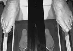 En spegellåda som visar ett par väldigt låga fotvalv/pronerade fötter.