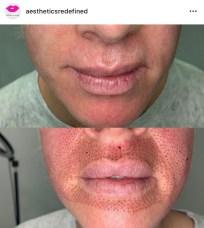 Nasal labia's & lip flip