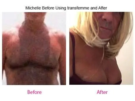 Michalle Before using Transfemme & After