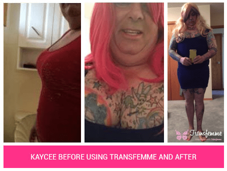 Kaycee-Before-After