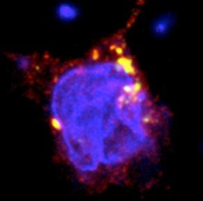 En amarillo, actividad autofágica de TMEM59 en presencia del gen normal. Imagen CIC.