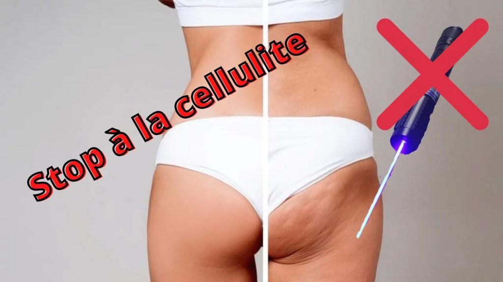 faire disparaître la cellulite sur les fesses et les cuisse