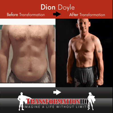 HQ Before & After 1000 Dion Doyle