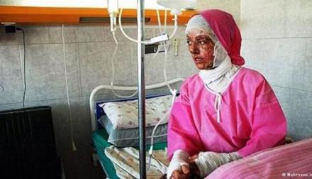 20141025203845518579861_acid-attack-victim-in-isfahan1