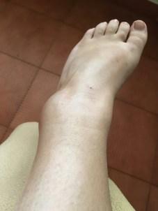Lovely swollen ankle