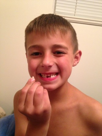 2nd tooth gone
