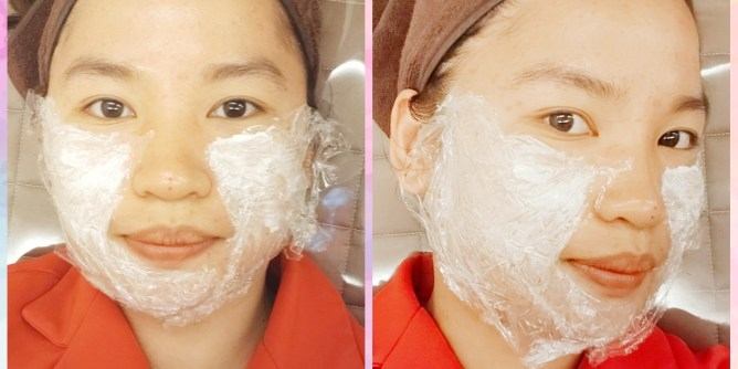 Face Thread Lift in Korea