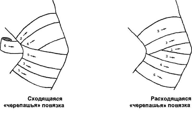 expoziția corectă a bandajului elastic în varicoză