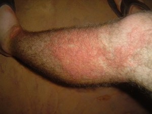 The skin infection I had during my Peace Corps pre-service training.