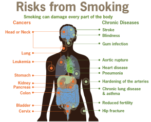 The detailed risks from smoking including cancers and chronic diseases that can occur on each part of your body