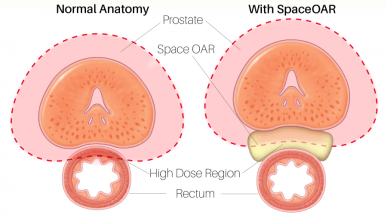 Example of SpaceOAR in a normal anatomy