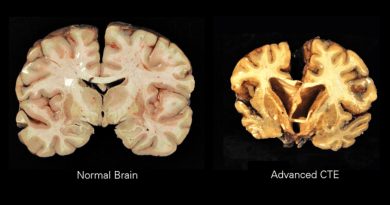What Retired Professional Football Players are Learning about Brain Health