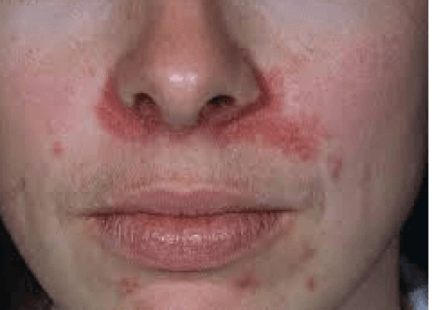Lupus Chapped Lips