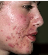 hard bumps on face