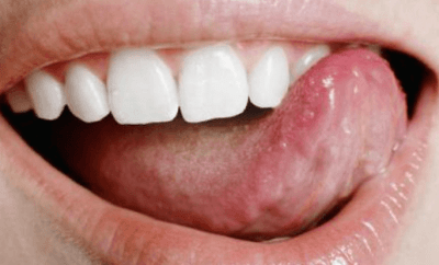 how to get rid of white tongue from antibiotics