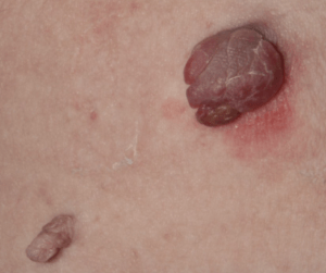 Irritated skin tag on anus