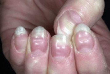 White Dots On Nails Causes Symptoms Meaning Myth Superstitions