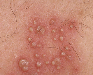small pimples on genital area