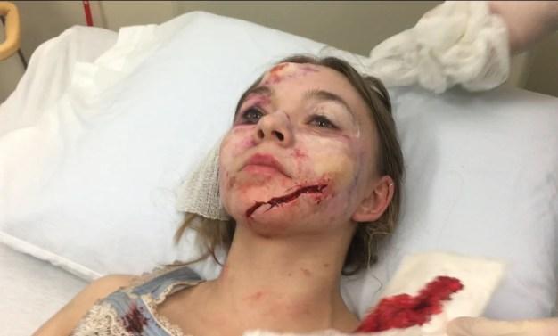 Ghostland | Após ter rosto desfigurado durante as gravações, atriz entra com processo judicial