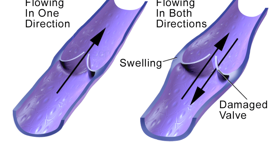 Healing Varicose Veins, Edema, and Swollen Ankles