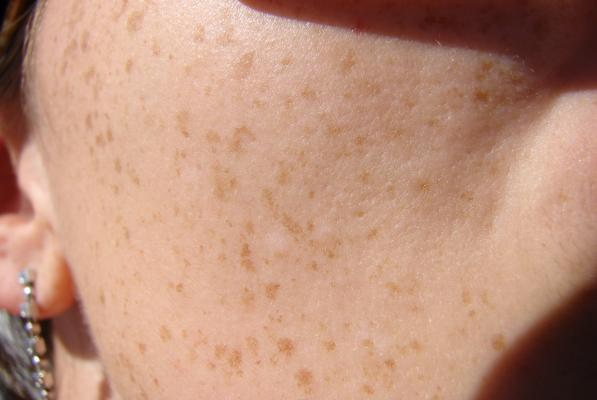 Healing Liver Spots