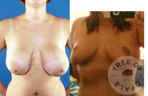 before and after my breast reduction, 34JJ to 34D