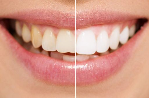 Is Zoom Teeth Whitening Procedure Painful