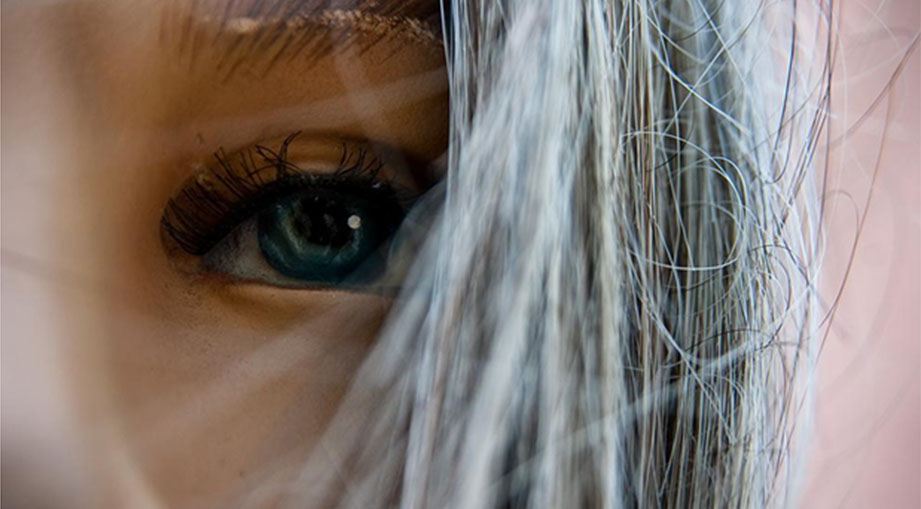 Gray Hair Causes and Treatment
